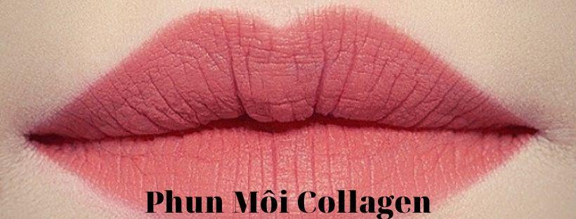 phun_moi_collagen