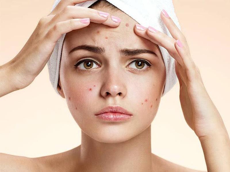 các bước skincare cho da mụn hình 4